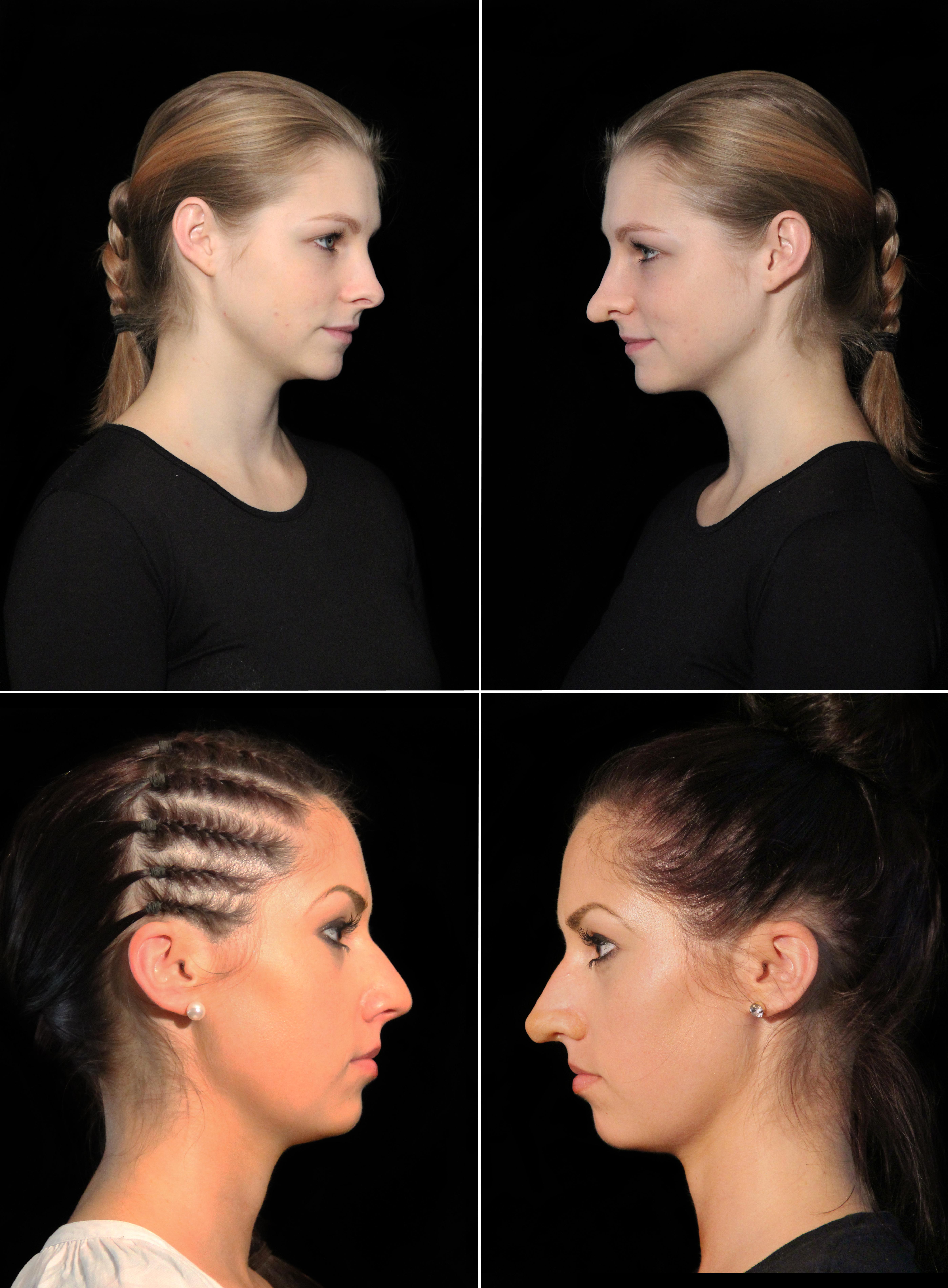 Hair, Nail, Make-up und Fashion styling portfolio / jelena-v--gtli-zehntner - special-effects-nasen-bild-ID38-1.jpg?v=1585835742